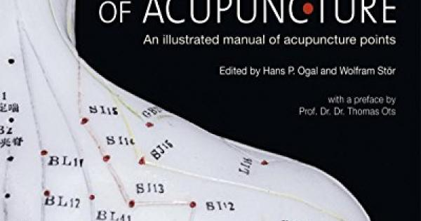 Acupuncture the best amazon price in savemoney fandeluxe Images